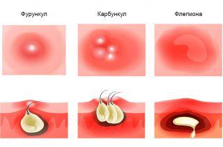 Инфекции мягких тканей